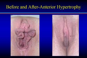 Labiaplasty-Before_and_after,_anterior_hypertrophy